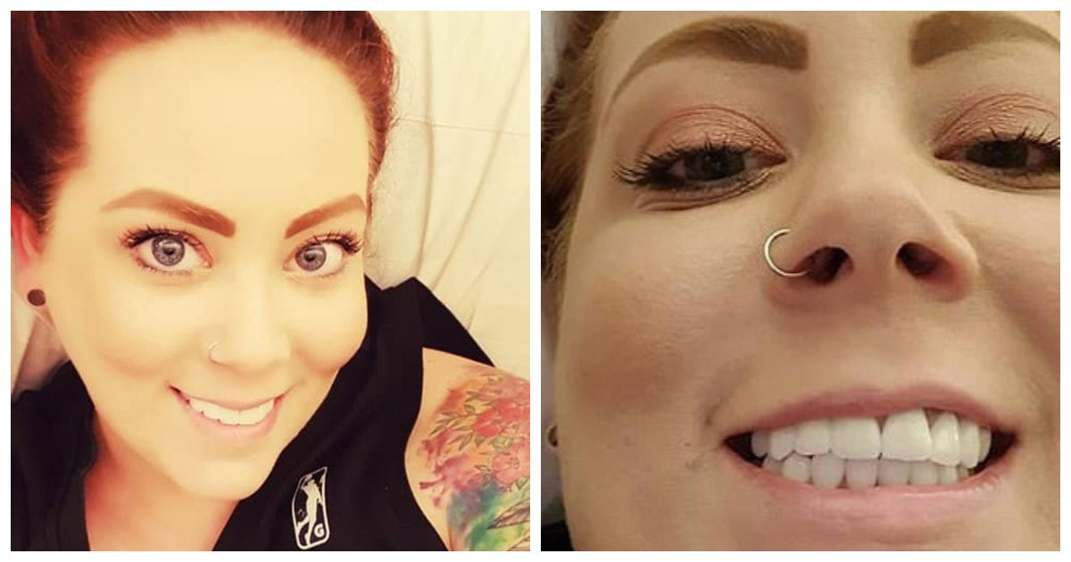 teeth.jpg?resize=412,232 - An Australian Woman Has Debuted Her Amazing New Smile After Spending $5,500 On Whole Mouth Reconstruction
