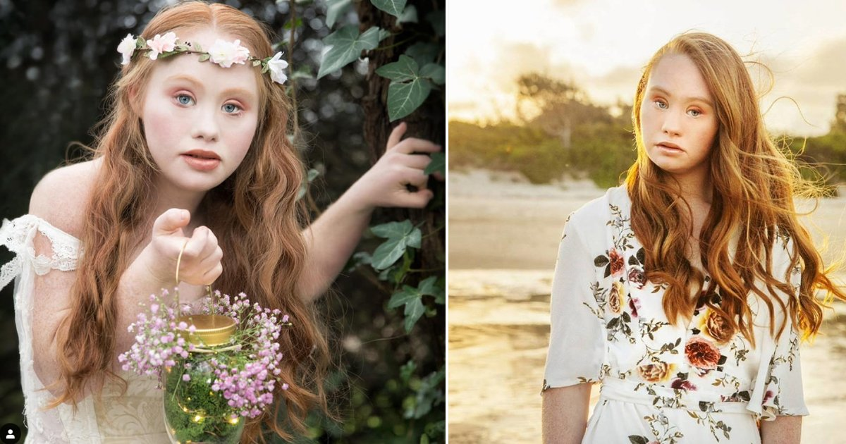 8 17.jpg?resize=1200,630 - Madeline Stuart Became A First Model With Down Syndrome, Inspiring Millions Others