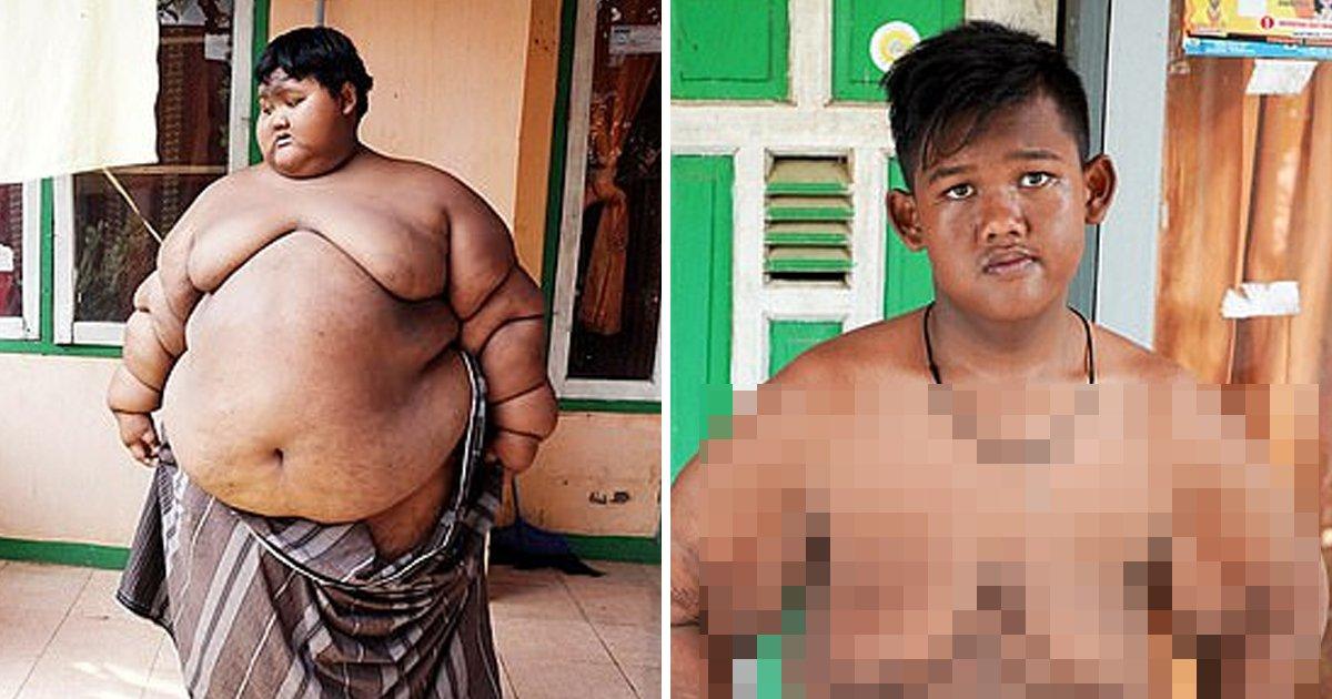 9 15.jpg?resize=412,232 - 세계에서 가장 뚱뚱했던 소년의 놀라운 '다이어트' 근황.jpg