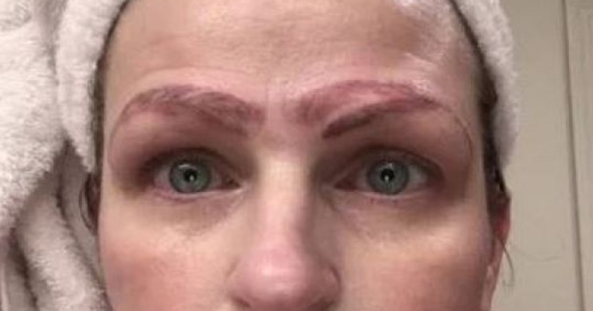 b3.png?resize=1200,630 - Botched Microblading Procedure Left A Woman With Four Eyebrows