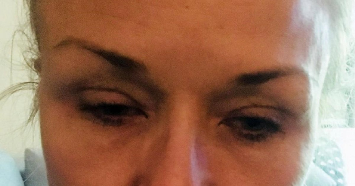 e4 1.jpg?resize=412,232 - Woman Discovered The Shocking Consequences Of Not Taking Mascara Off Properly