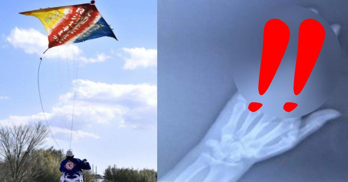 e696b0e8a68fe38395e3829ae383ade382b7e38299e382a7e382afe38388 37.png?resize=1200,630 - 風が強い日に「凧揚げ」をしていた男性…指が3本も折れてしまい、そのX線写真が…