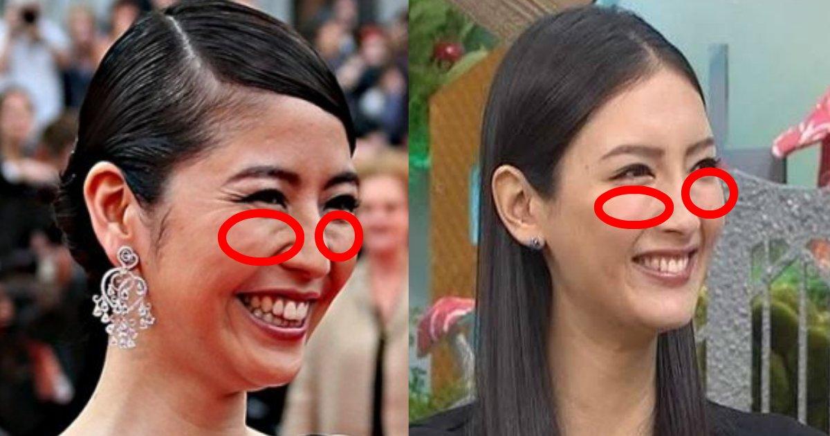 gorugo 1.png?resize=1200,630 - なかなか消えない顔のゴルゴラインを消す方法は?自己管理で何とかなる?