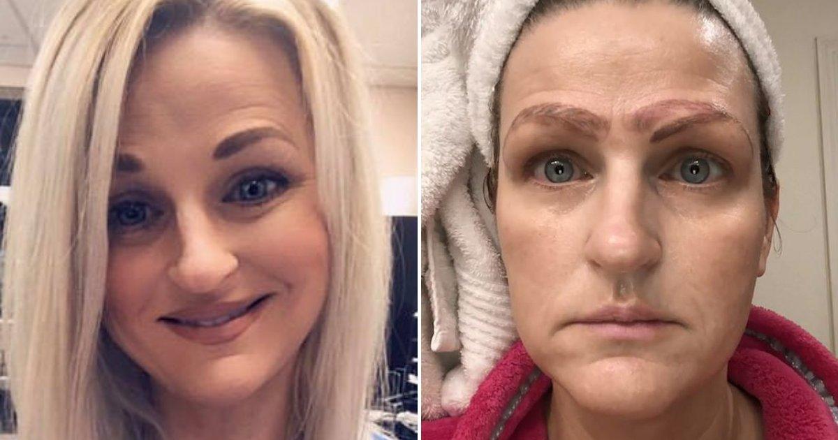 mother6.png?resize=188,125 - Une femme larguée par son petit ami après un traitement qui l'a laissée avec quatre sourcils