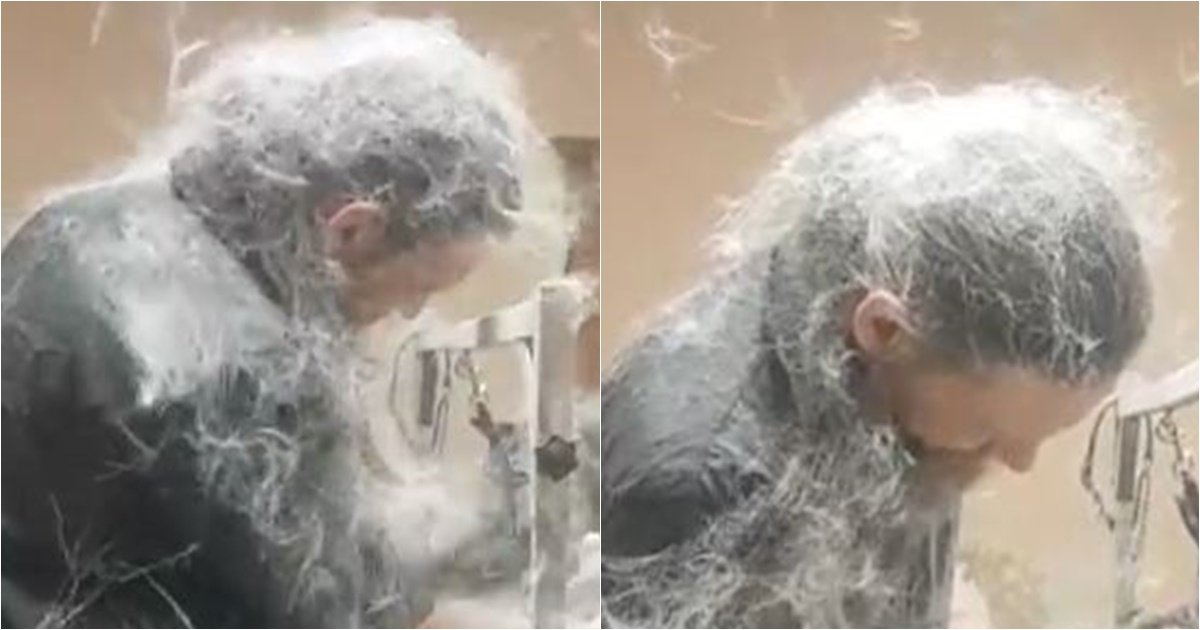 s 74.jpg?resize=412,232 - 남성의 몸을 뒤덮은 하얀 눈의 진짜 정체
