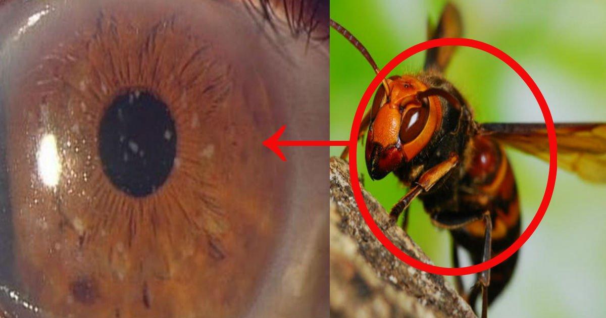 untitled 16.jpg?resize=300,169 - 女性の目から生きた蜂が4匹!?「涙の中の水分と塩分をえさにして生きていた」