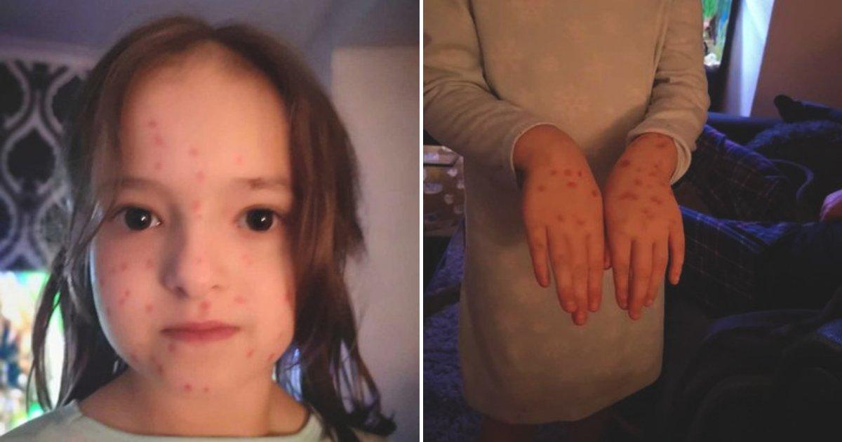 untitled design 88.png?resize=300,169 - Une petite fille de 6 ans très maligne a utilisé un marqueur permanent pour tenter de simuler la varicelle et éviter l'école
