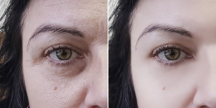14Remédios caseiros fáceis para ter uma pele mais fresca eradiante