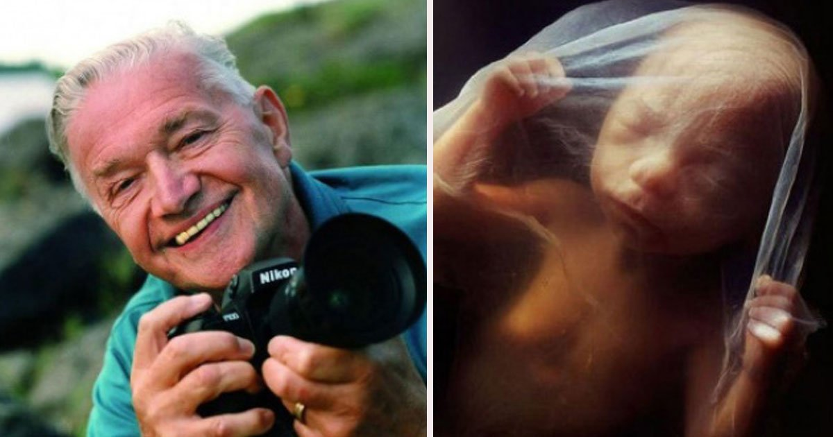 59.jpg?resize=1200,630 - How A Child Is Born: Photographer Spent 12 Years Of His Life Taking Pictures Of A Fetus Growing In The Womb