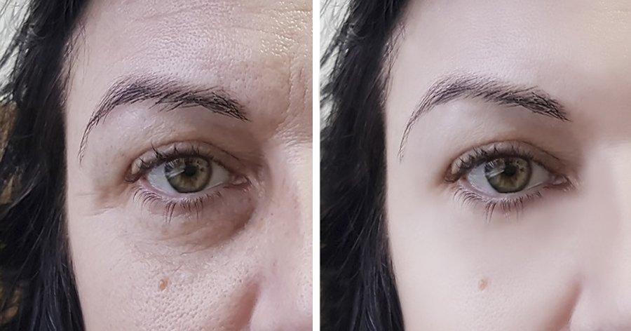 a6 9.jpg?resize=412,275 - 14 Remédios caseiros fáceis para ter uma pele mais fresca e radiante