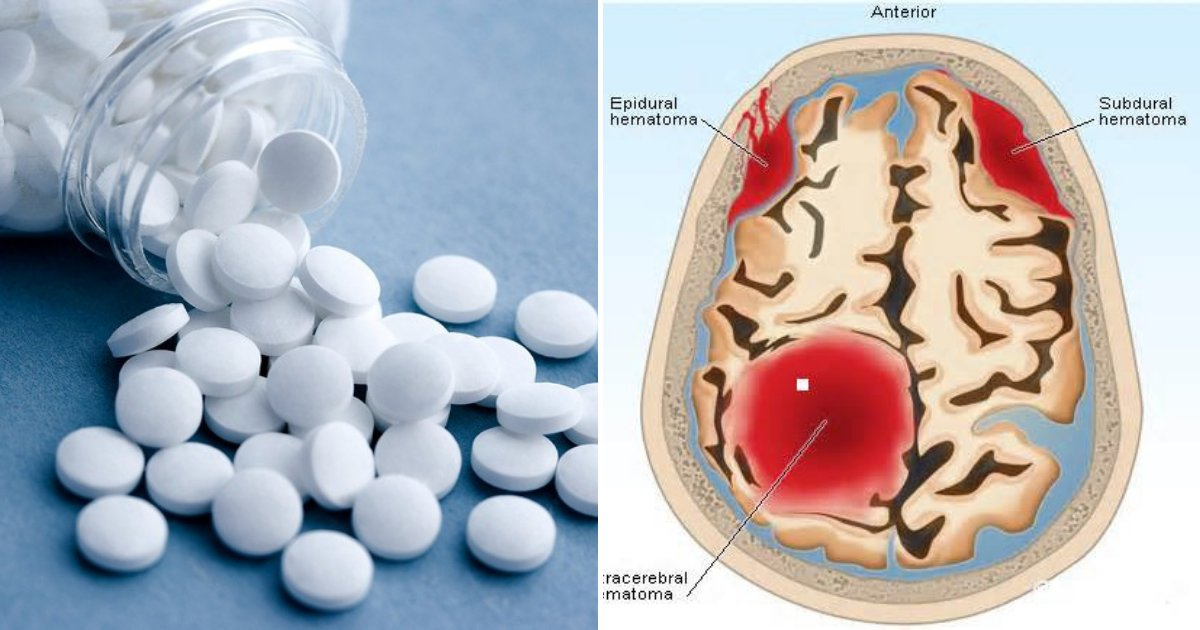 aspirin4.png?resize=412,232 - Taking ASPIRIN Increases Risk Of Bleeding In The Skull, Especially Among People Without Heart Issues