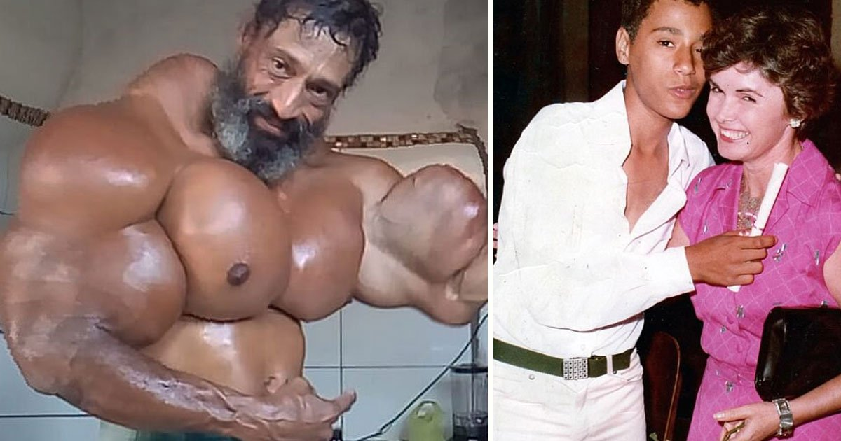 bodybuilder synthol.jpg?resize=1200,630 - Bodybuilder Who Was Once A Skinny Addict Is Risking His Life