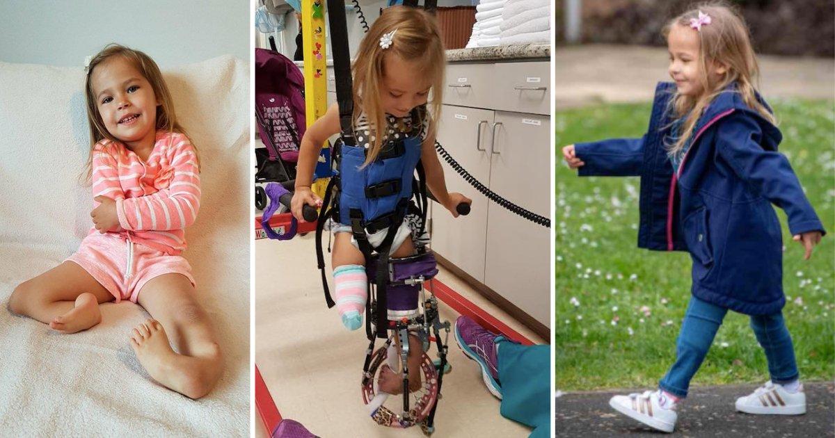 d4 2.png?resize=1200,630 - Merci aux étrangers qui ont financé la chirurgie de la petite fille née avec des jambes pliées