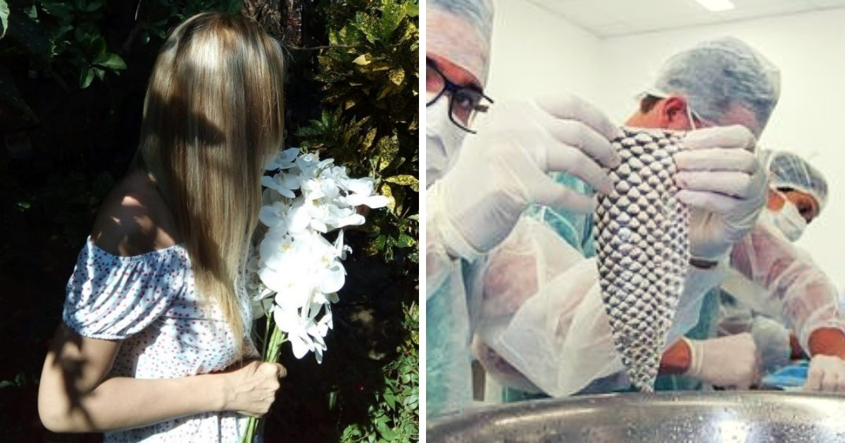 fish4.png?resize=412,232 - Trans Woman Becomes The 'First In The World' To Have A Vagina Made From Fish Skin