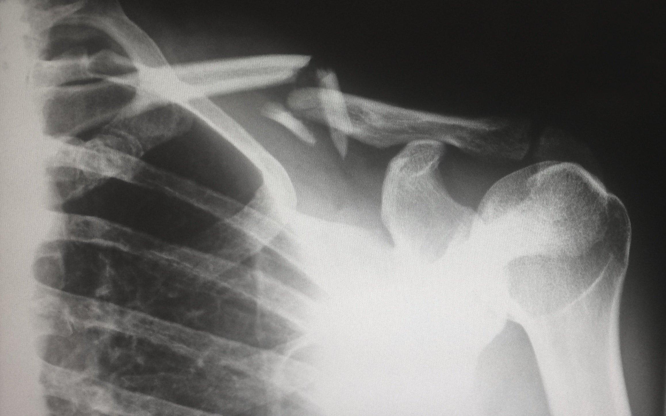 harlie raethel 516092 unsplash.jpg?resize=412,232 - Un hôpital Lyonnais possède un scanner unique qui va fortement aider la médecine!