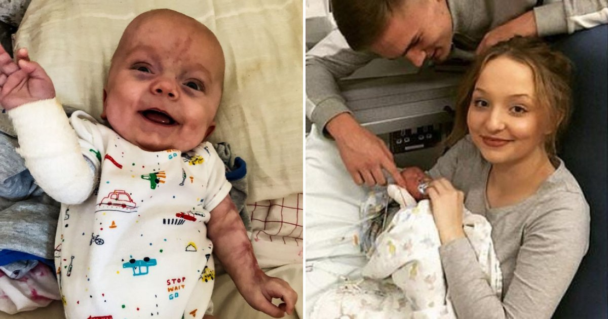 kaiden7.png?resize=412,232 - Preemie Baby Miraculously Survives Despite Being Born Without Skin