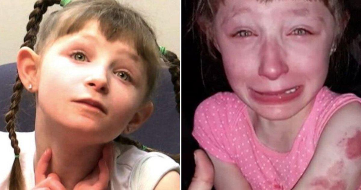 lillian5.png?resize=412,232 - Une jeune fille de 10 ans qui ne peut pas parler est apparue couverte de bleus après avoir été attaquée dans le car scolaire