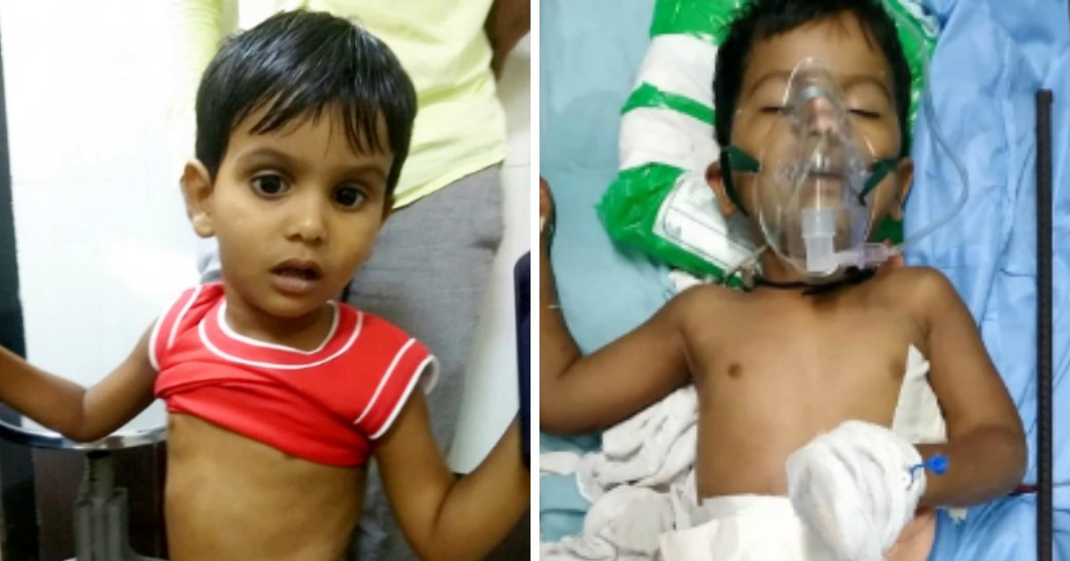 nadeem5.png?resize=1200,630 - Un bambin de 3 ans survit après avoir été empalé par une tige de fer de 180 cm de long après une chute de 9 mètres d'un bâtiment