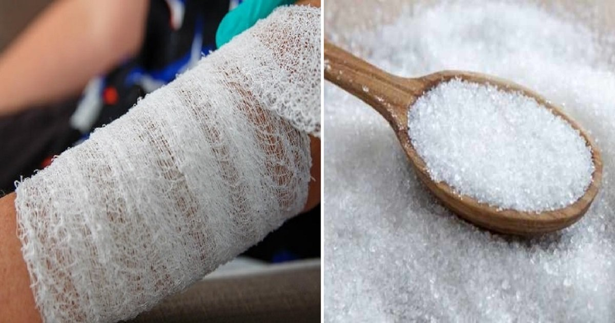 s4.jpg?resize=412,232 - Sugar Can Actually Be Used To Heal Your Wounds - Here's How