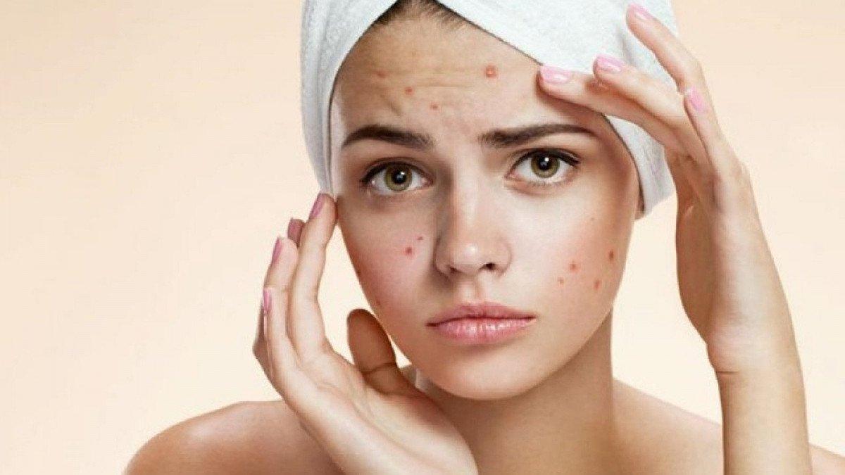 Resultado de imagen de acne