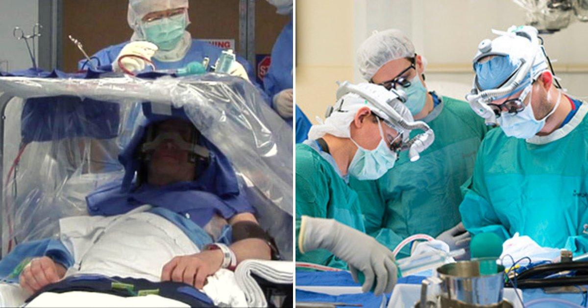 tumor4.png?resize=300,169 - La plus grosse tumeur au cerveau du monde a été enlevée et l'homme est en bonne santé