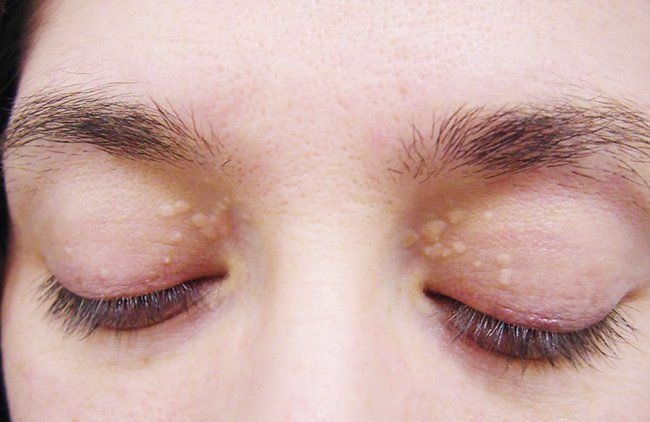 Image result for Home Remedies for Cholesterol Deposits Around the Eyes
