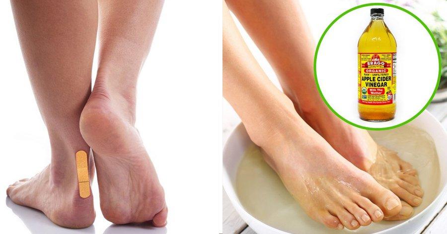 a3 19.jpg?resize=1200,630 - 10 Atitudes simples que podem ajudar a manter seus pés mais saudáveis