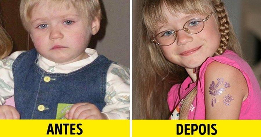 a9 11.jpg?resize=1200,630 - 12 Fotos de crianças antes e depois de serem adotadas