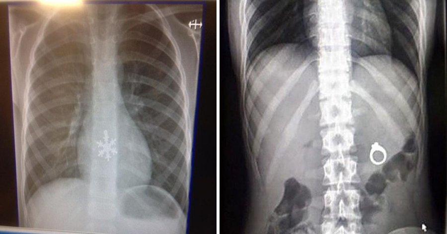 a9 3.jpg?resize=1200,630 - 16 Fotos estranhas de raios X para quem acha que já viu de tudo