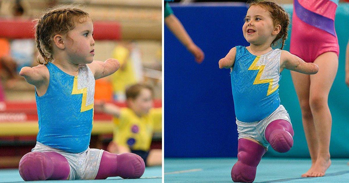 amputee toddler.jpg?resize=412,232 - La quadruple amputée âgée de 5 ans assiste maintenant à des cours hebdomadaires de gymnastique