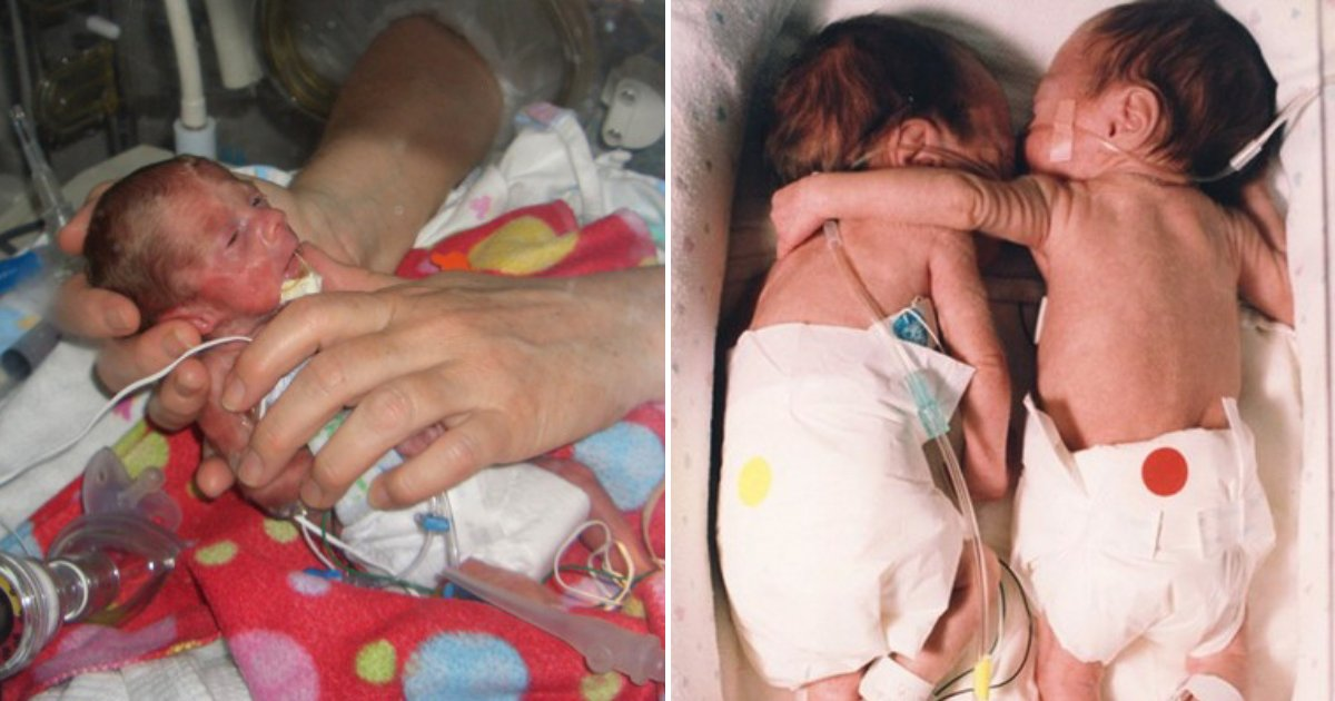 babies.png?resize=412,232 - Premature Baby Was Dying, Nurse Places Her Next To Twin To Say Goodbye Then A Miracle Happened