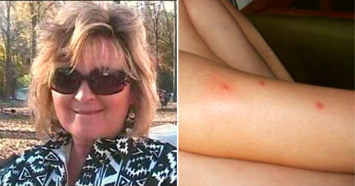 bite.png?resize=412,275 - Mother-Of-One Passed Away Only Weeks After Ignoring 'Normal' Bug Bites