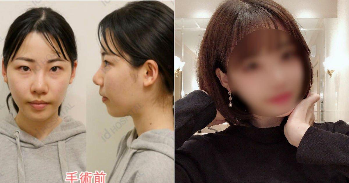 dpfispau0aa3als.jpg?resize=412,275 - 한국에서 '원정성형' 받은 일본 유명 성인방송 배우의 놀라운 수술 전후.jpg
