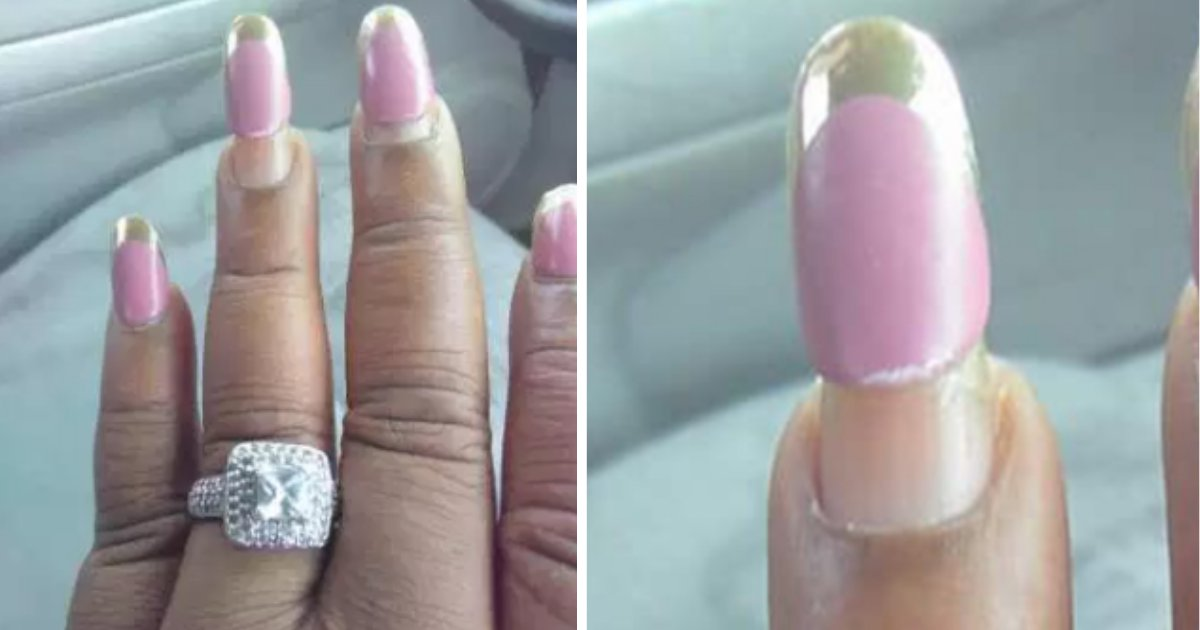 s4 6.png?resize=412,275 - Woman Who Tried To Show Off Engagement Ring Got Ridiculed For Bad Nails Instead