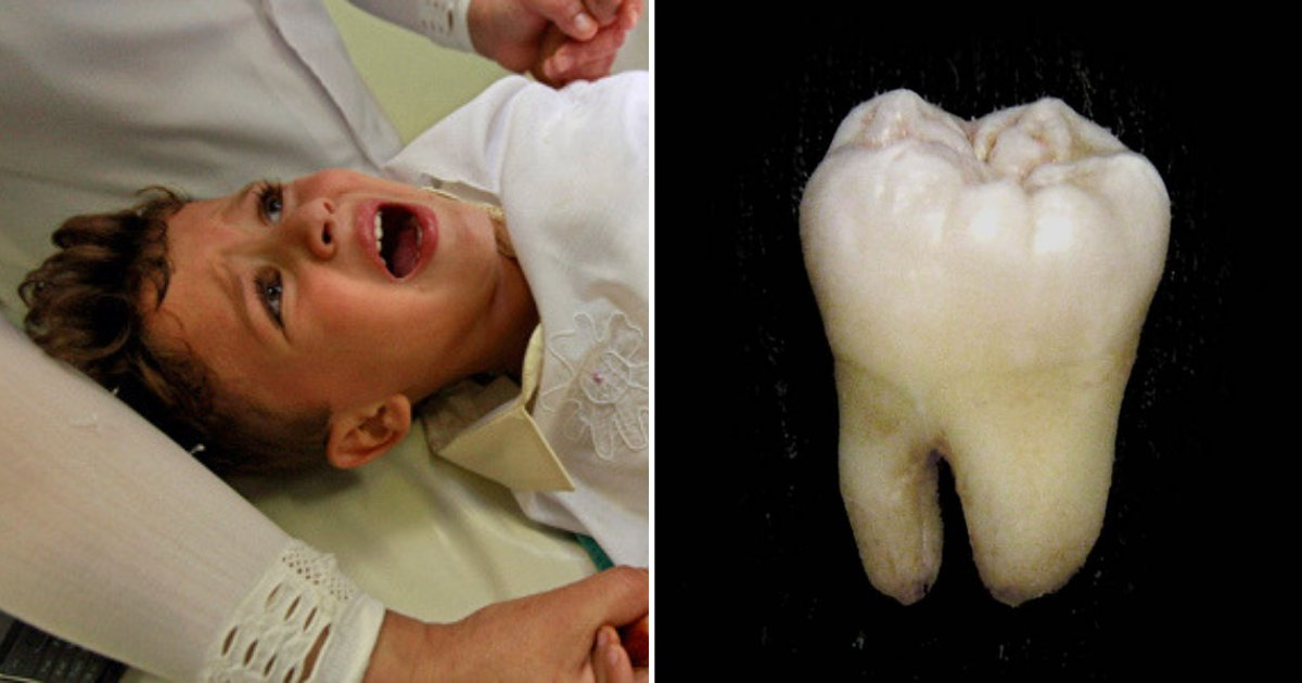 tooth3.png?resize=412,232 - Doctors Were Stunned to Find Boy's Missing Molar Tooth In This Part of His Body