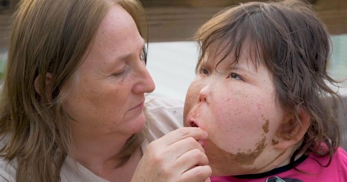 11 10.jpg?resize=412,232 - This Little Girl Has A Rare Condition Which Is Yet To Be Named And If Doctors Can't Figure Out They'll Name It After Her