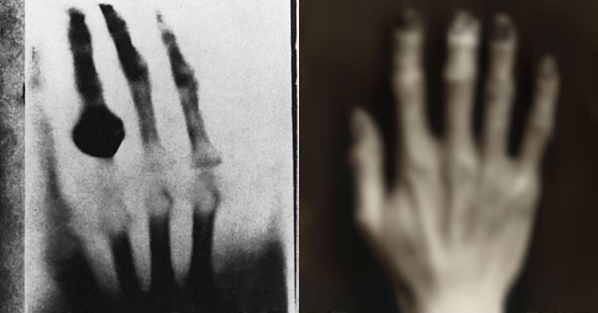 15384688 7180945 image a 13 1561755657539.jpg?resize=1200,630 - 'X-Ray' 개발 위해 8년간 '방사선' 맞았더니 생긴 '충격적인' 변화