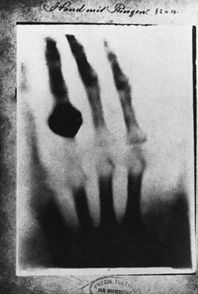 Wilhelm Roentgen unintentionally invented the X-ray and captured the first such image. News of his discovery spread around the world after he published this photo of his wife