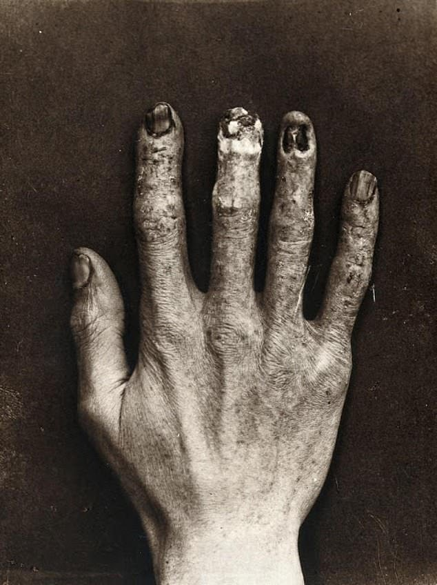 The hand of death: Clarence Dally