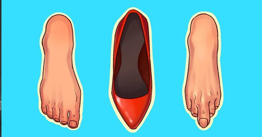 a6 3.jpg?resize=412,232 - 6 tipos de sapatos que podem causar muitos danos ao seu corpo