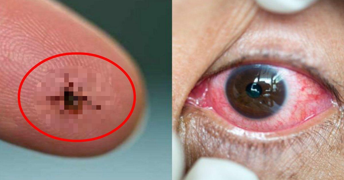 aaaa.jpg?resize=1200,630 - 【閲覧注意】目が痒くて眼科で診てもらった結果、目の中に「ダニ」が入ってた…