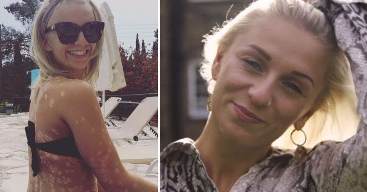 """dalmatian skin woman.jpg?resize=412,232 - Une femme à la peau de """"dalmatienne"""" a appris à accepter son corps"""