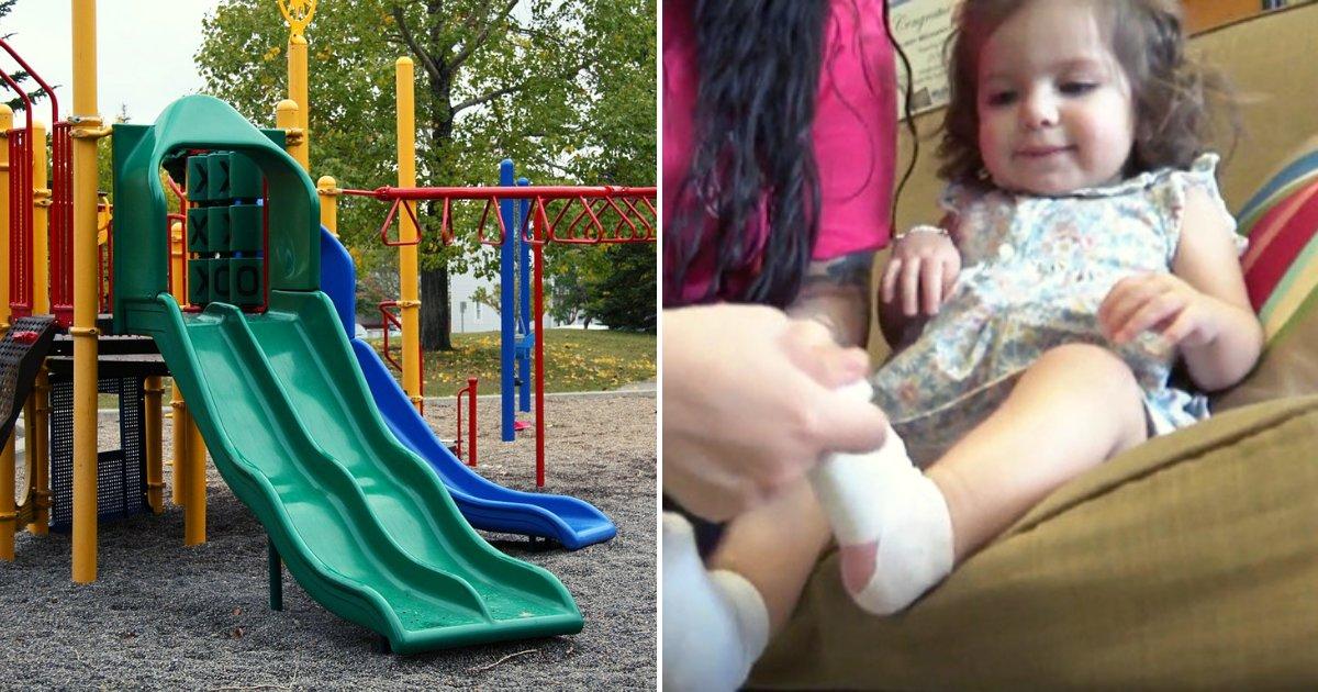 daughter3.png?resize=300,169 - Une fillette de un an a eu les pieds brûlés au 2ème degré après avoir marché sur le terrain de jeux de la crèche sans chaussures