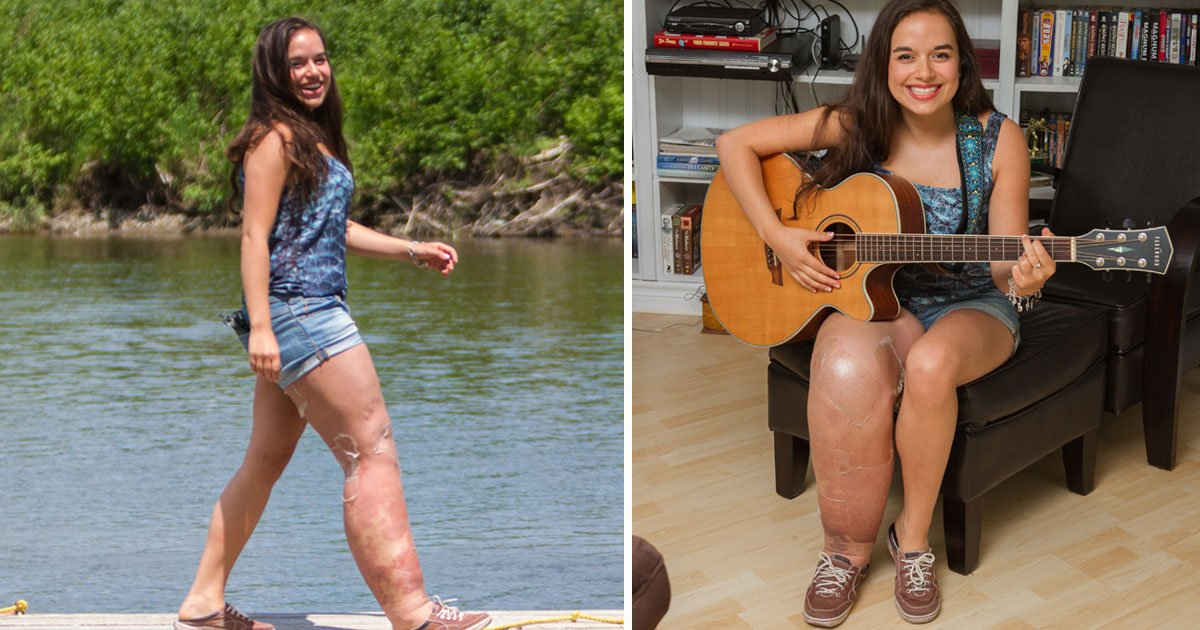 girl with leg swell.jpg?resize=412,232 - Girl - Who Was Born With A Genetic Condition Which Caused Her Leg To Swell - Is Encouraging People To Feel Comfortable In Their Own Skin