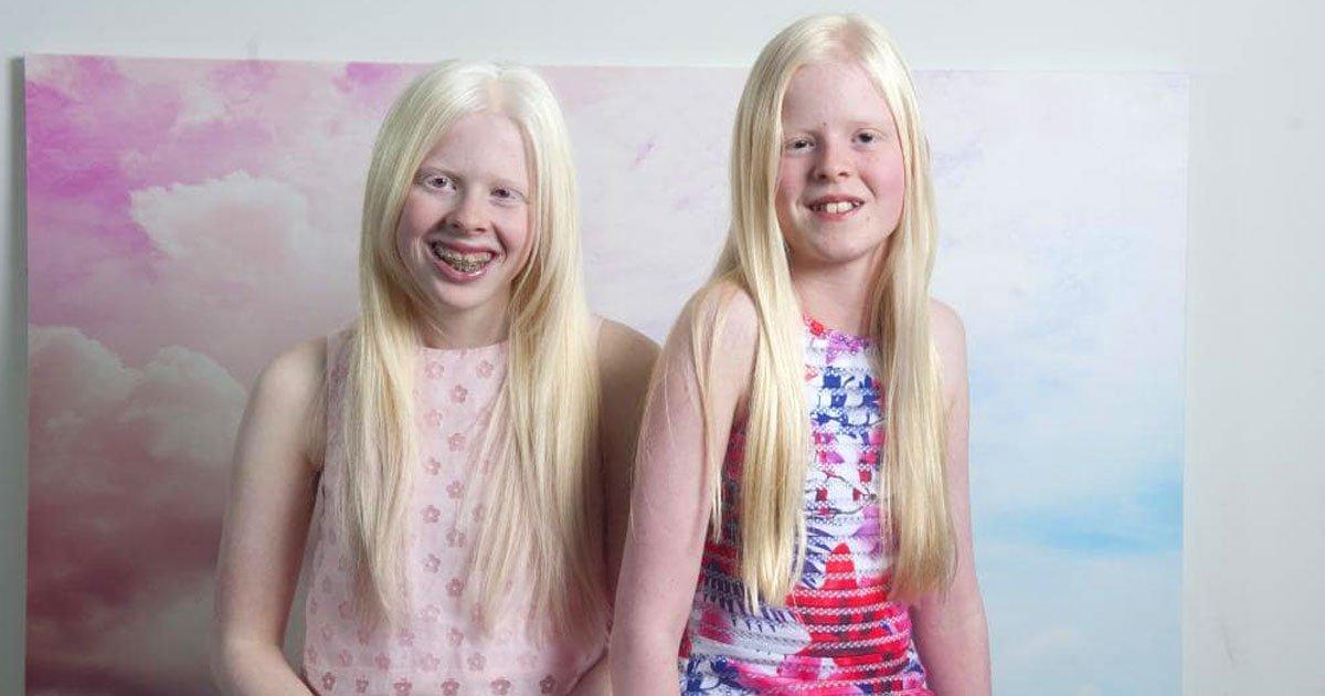 """girls with albenism.jpg?resize=1200,630 - Deux filles """"albinos"""" sont inséparables et ont le même compte Instagram où elles partagent leurs photos"""