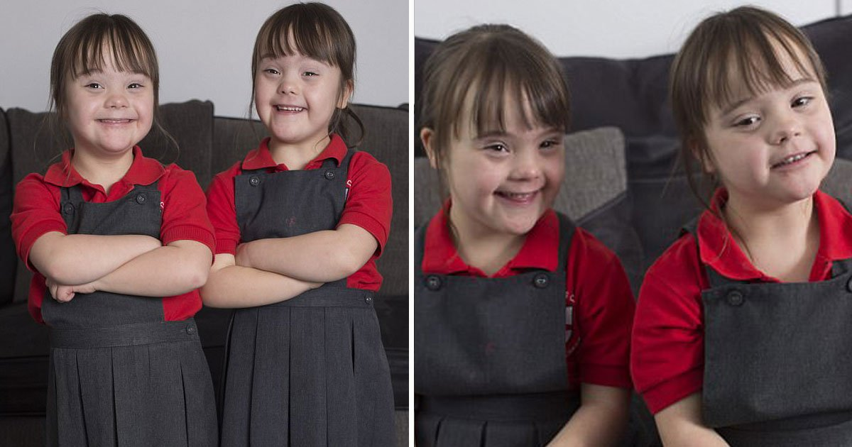 identical twins down syndrome.jpg?resize=412,275 - Parents Are Proud Of Their Identical Twins With Down's Syndrome As They Say There's Nothing Negative About Them
