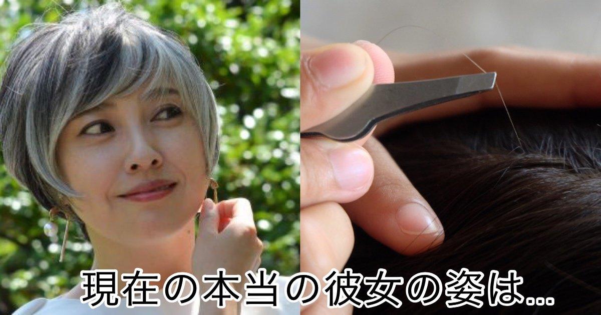 img 4377.jpg?resize=1200,630 - 「私は美しい」と思えるまで…髪を抜き続けた○○年、夫にも秘密にしていた女性