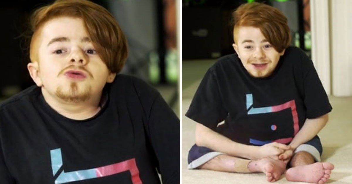 man broke 200 bones.jpg?resize=1200,630 - Young Man - Who Has Broken More Than 200 Bones In His Life Due To A Rare Genetic Condition - Has A YouTube Channel To Inspire Others