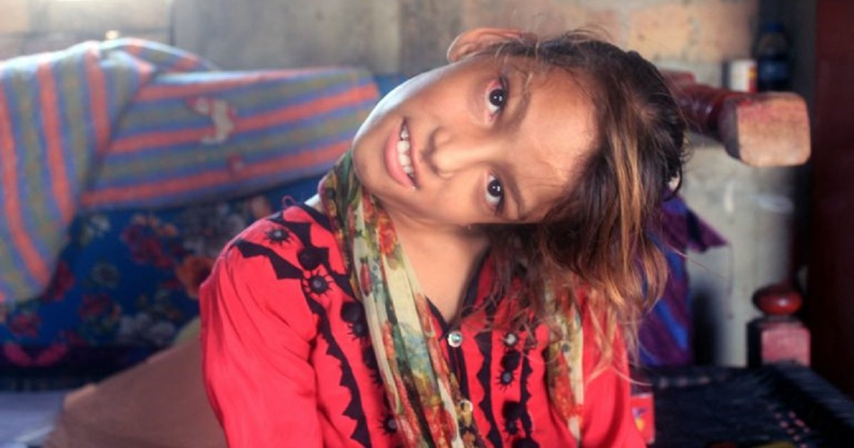 n3.jpg?resize=300,169 - Heartbreaking Story Of A Girl Whose Neck Is Bent At 90-Degrees But Can't Afford To Get Surgery