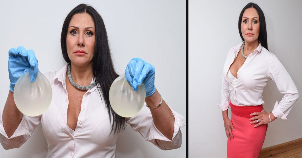 untitled 1 39.jpg?resize=412,232 - A 50 Year Old Woman Spent $32K On Six Breast Implants After Her Husband Said She Looked Like A Man